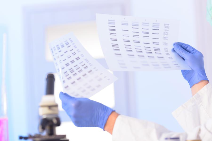 骨髄移植した男性の精液から「ドナーのDNA」しか検出されない事態が発生