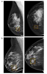 医者よりも正確?乳がんの誤診断を6%減少させるAIをGoogleが開発の画像 3/3
