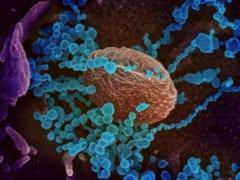 新型コロナウイルスは「免疫細胞を無効化する」という研究結果の画像 1/4