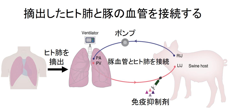 損傷したヒト肺を「豚に移植して回復させる」ことに成功! 生体だけに含まれる未知の物質の存在が示唆されるの画像 2/5