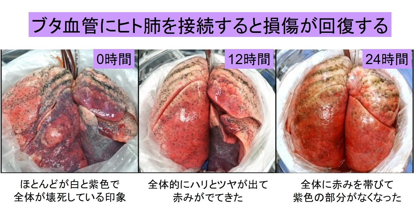 損傷したヒト肺を「豚に移植して回復させる」ことに成功! 生体だけに含まれる未知の物質の存在が示唆されるの画像 1/5