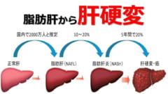 「1日4杯のコーヒー」は肝がんによる死亡リスクを70%少なくすると判明の画像 3/5
