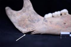 下顎骨の刃傷痕