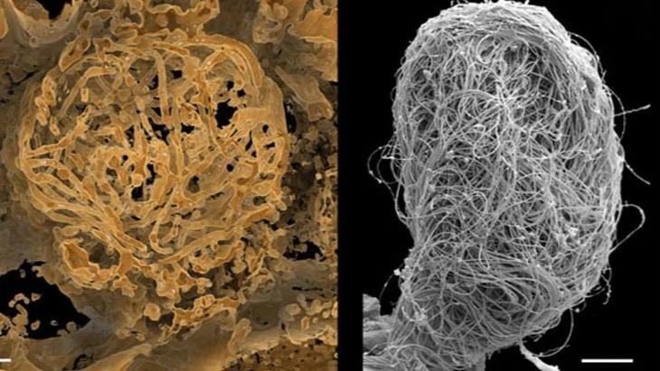 世界最古の「動物の巨大精子」が1億年前の琥珀から発見される!