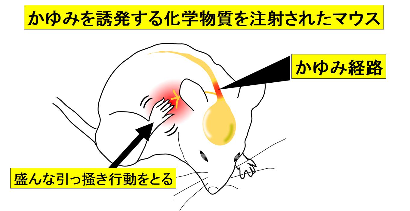 """ずっと謎だった「体中の皮膚を擦ると""""かゆみ""""が治まる効果」が証明されるの画像 2/5"""