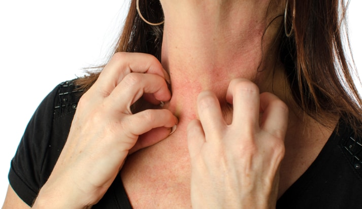 """ずっと謎だった「体中の皮膚を擦ると""""かゆみ""""が治まる効果」が証明されるの画像 1/5"""