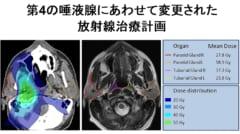 これまで唾液腺周辺の放射線治療はどんなに努力しても口の渇きを誘発する場合があった。新しい臓器である第4の唾液腺の存在が明らかになった今、放射線の照射経路を再構築する必要がある