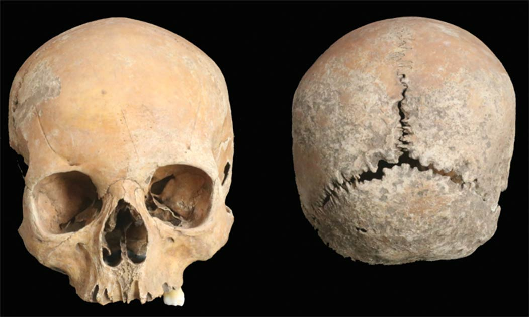 約1100年前の少女の頭蓋骨