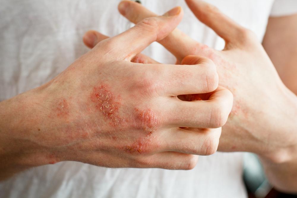 自己免疫疾患は増加している