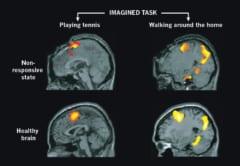 脳を損傷した無反応状態の人と、健康な人の類似した脳活動。