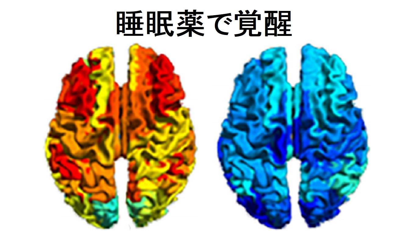 重度の脳障害を負った男性が睡眠薬で覚醒状態になる