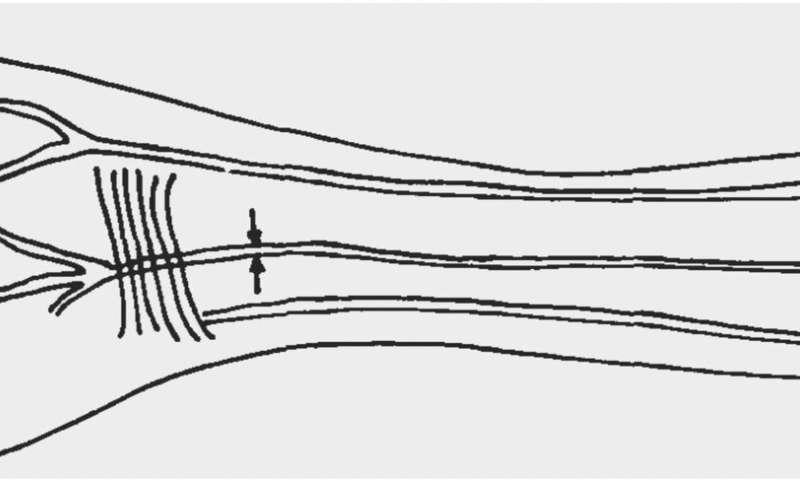 """""""人体が進化し続けている証拠""""を発見か!?前腕部に「第三の動脈」を持つ人々が増加している"""