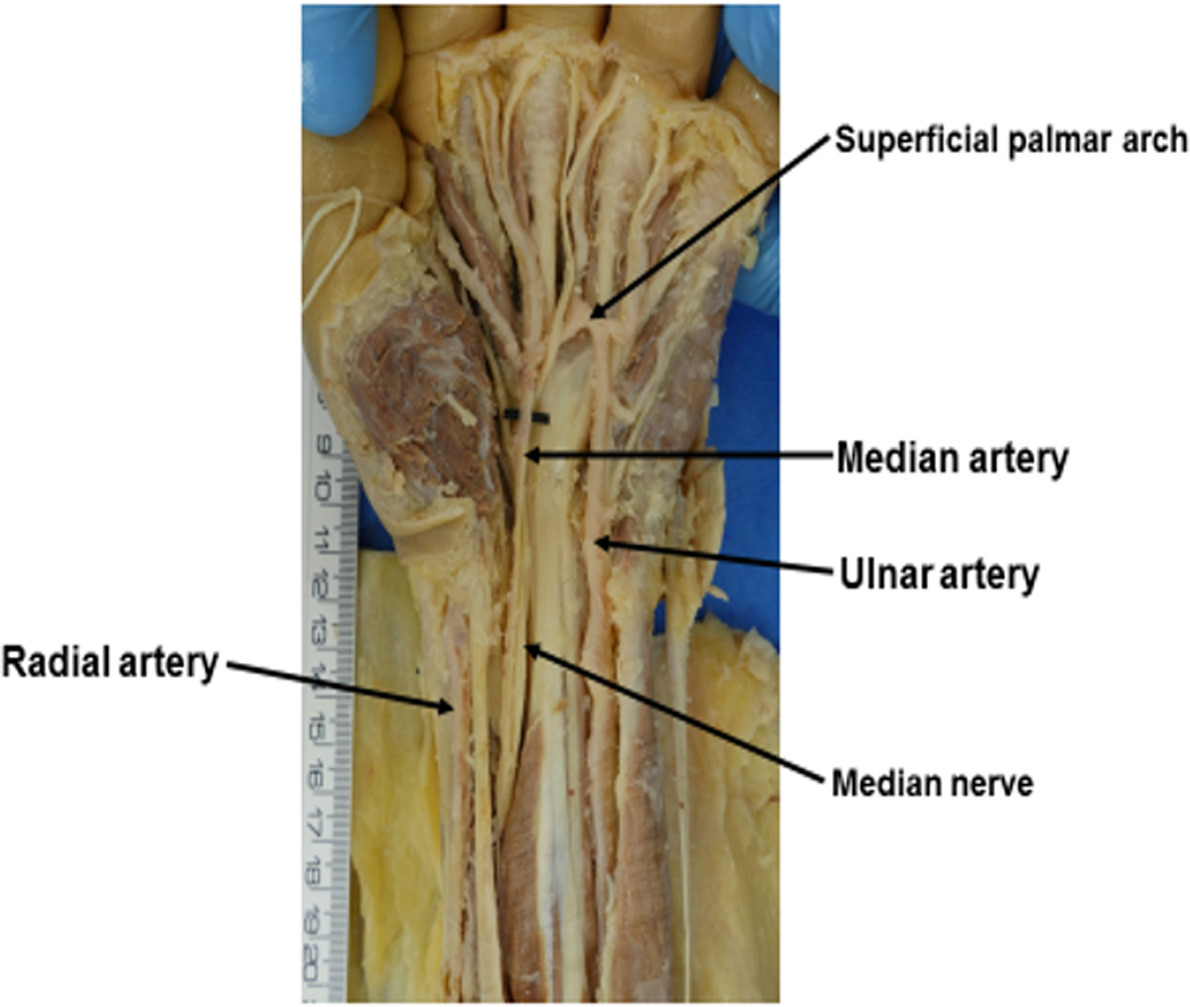 2つの動脈の間に正中動脈(median artery)が残っている場合も
