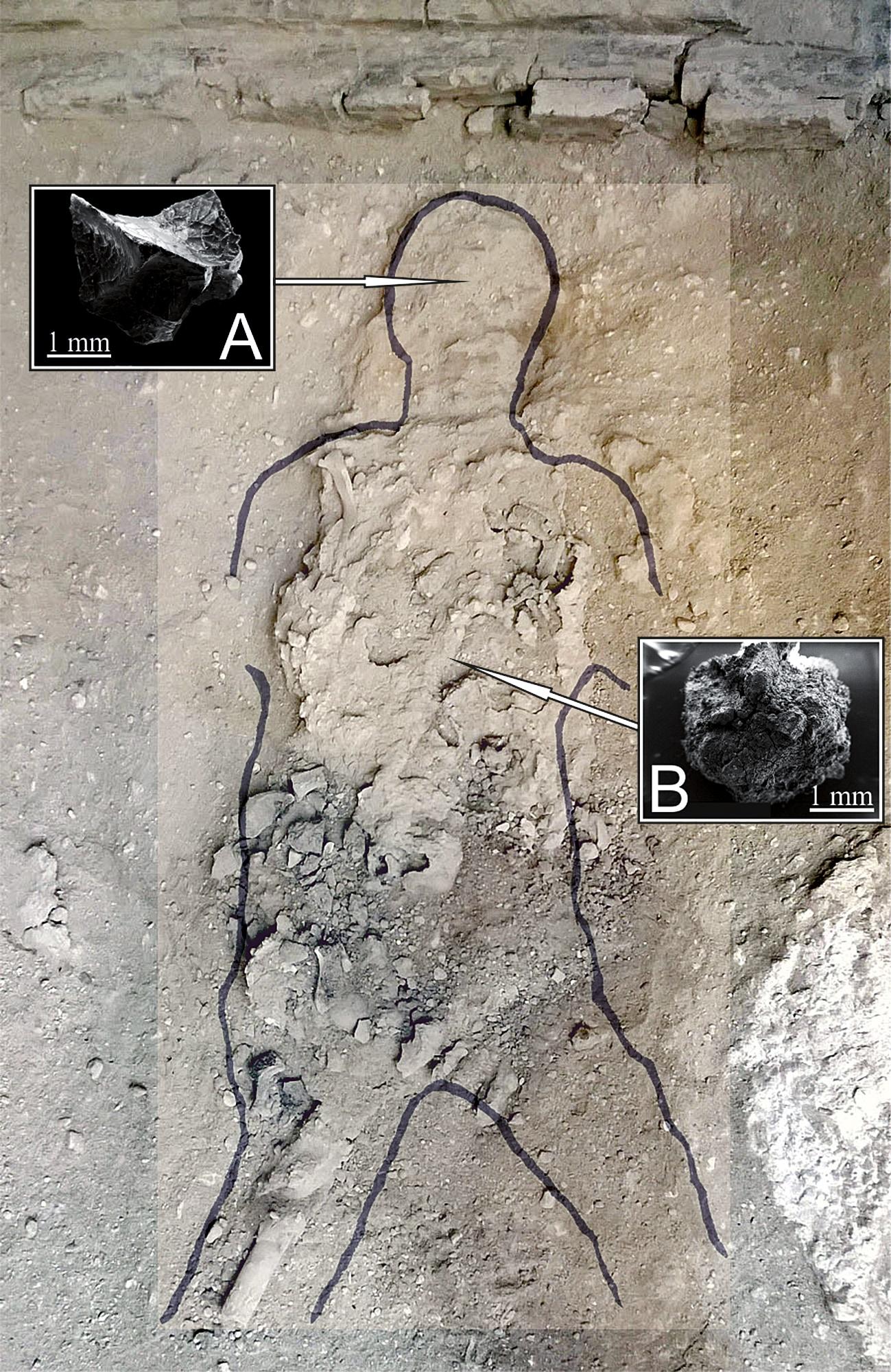 男性の遺体、見つかった脳組織AとB