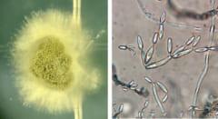 トゥインキーから採取された菌類の拡大図