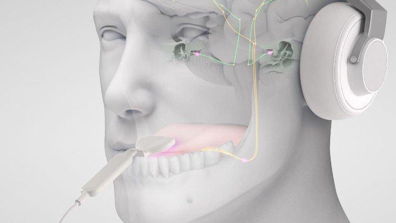 三叉神経と聴覚神経のバイモーダル神経調整