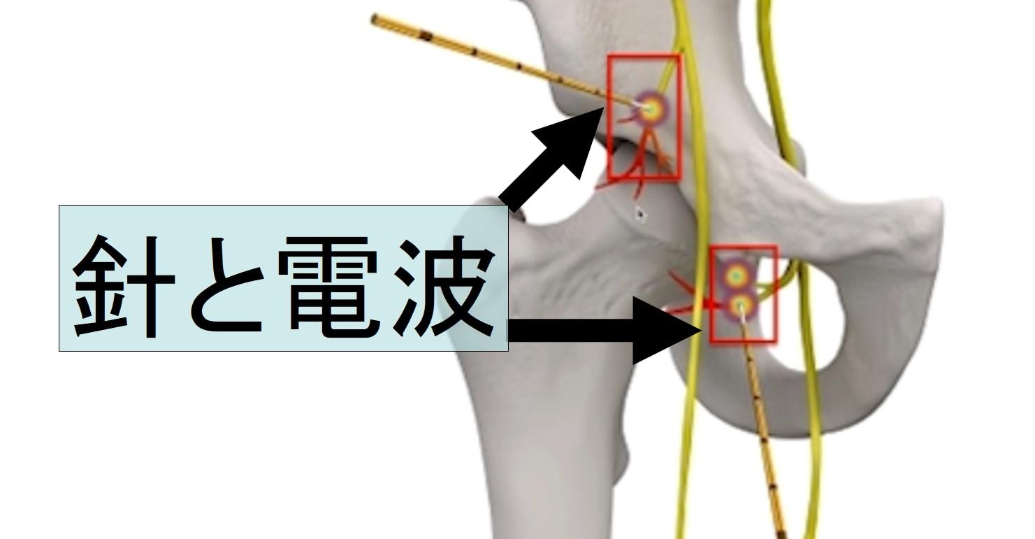 患部に針を挿入し電波を照射して加熱する