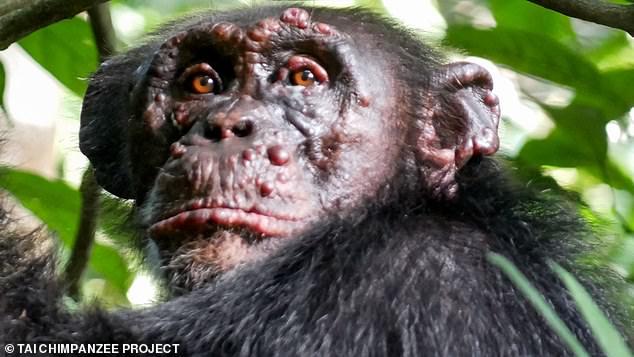 チンパンジーのハンセン病も人間と同じように進行する