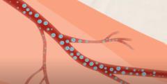 高圧酸素療法で酸素は体内に取り込む