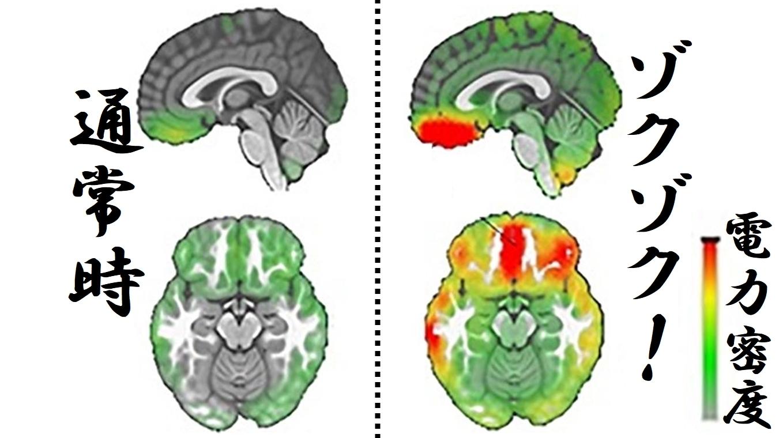 音楽でゾクゾクするとき脳内の電気密度も本当に上がっている