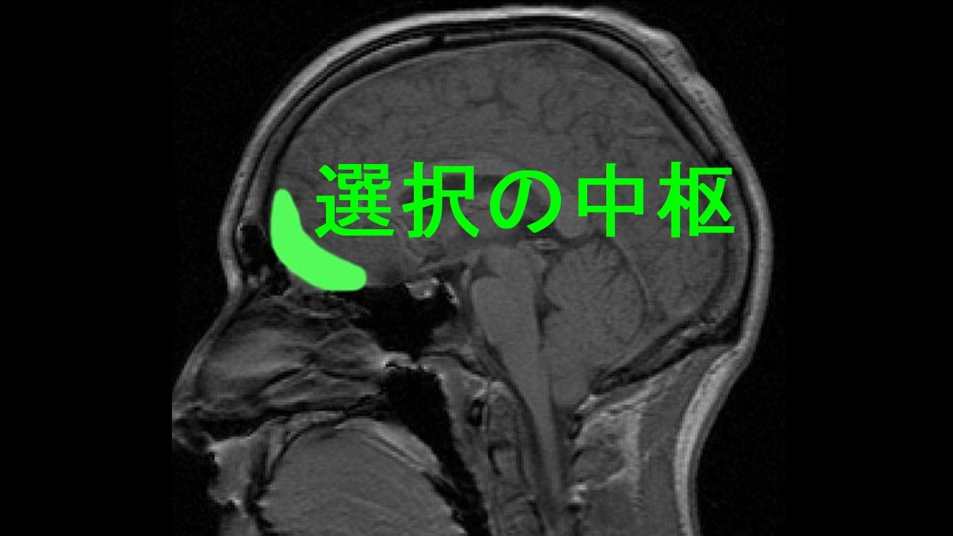 選択を司る場所は眼窩前頭皮質に存在する