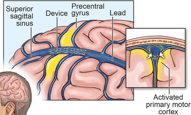 Stentrodeが脳領域で固定され、神経情報を読み取る
