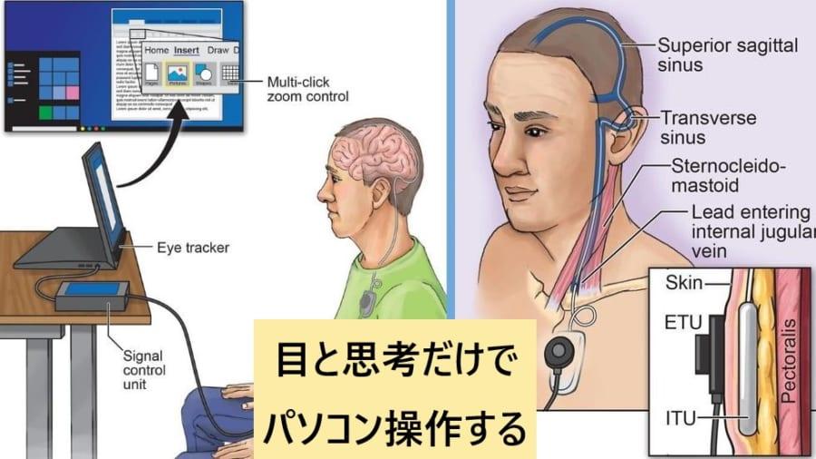 """""""思考でパソコンを操作可能""""にする脳インプラントが登場!"""
