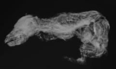 骨のスキャン画像