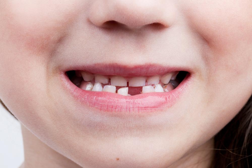 なぜヒトの歯は一度生え変わるのか? (2/3)