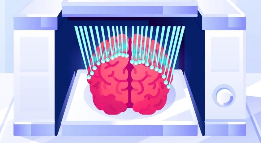 人間の脳をスキャンするにはマウスの1000万倍の労力が必要