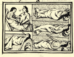 天然痘の被害を訴えるアステカの絵(1585年)