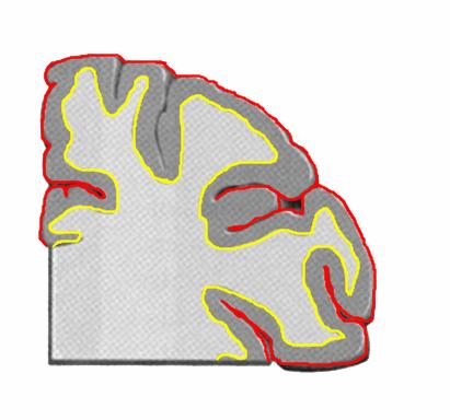 (赤線の内側)灰白質 , (黄線の内側)白質