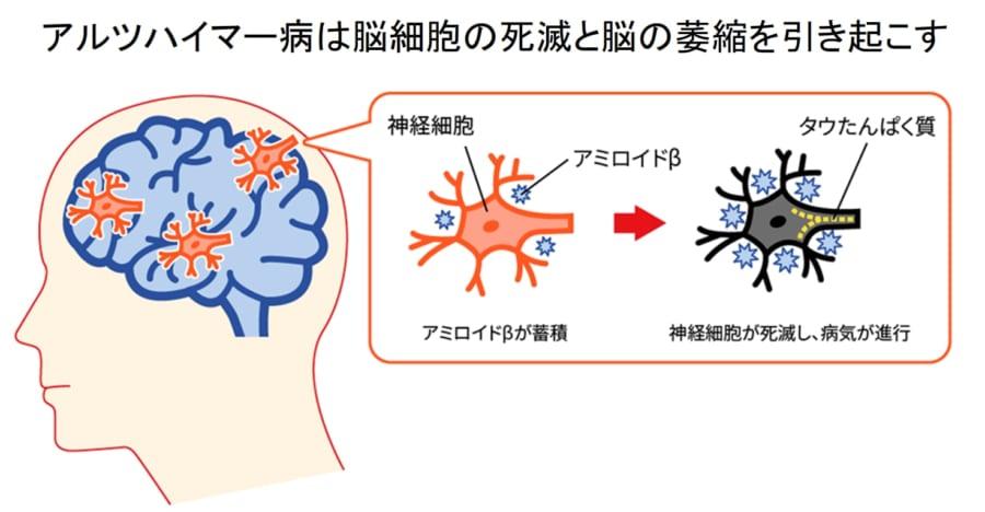 アルツハイマー病は脳内にアミロイドベータが蓄積する病気