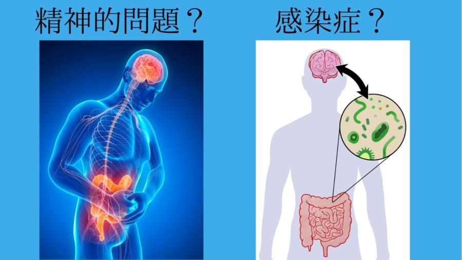 過敏性腸症候群の原因はずっと不明だった