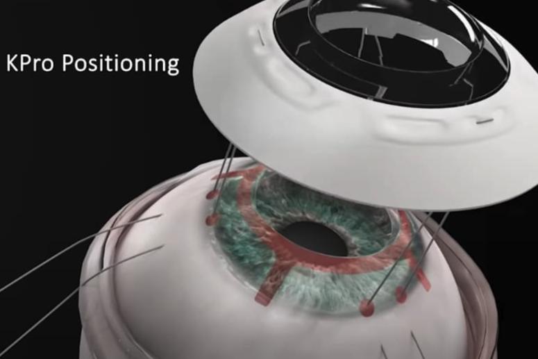 ドナーいらず「新しい人工角膜」の移植手術に成功! コンタクトレンズのように目を覆い手術を簡略化
