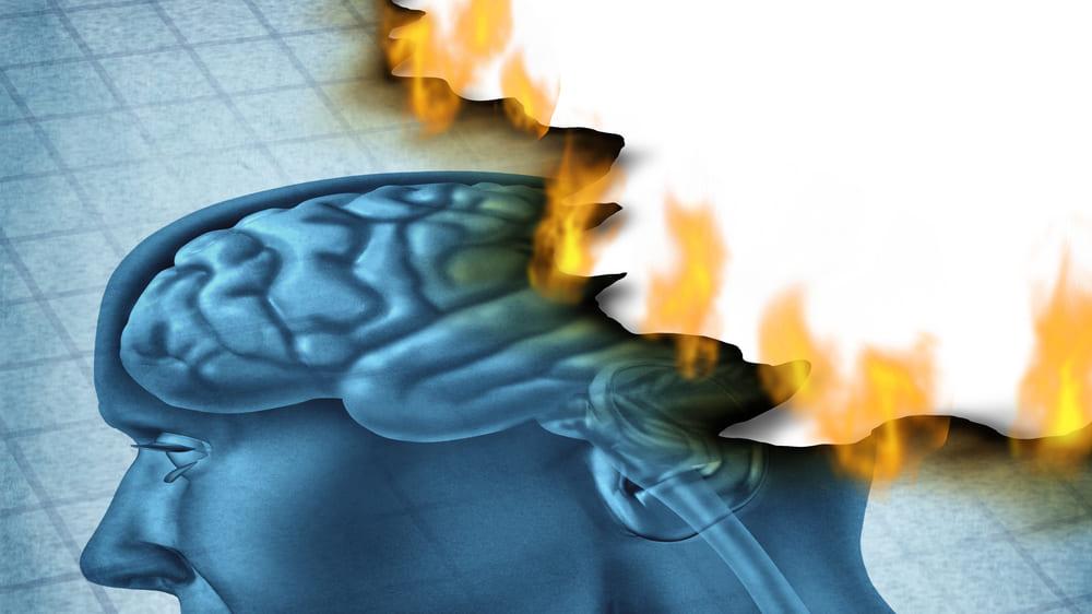 脳を老化させる免疫細胞を特定