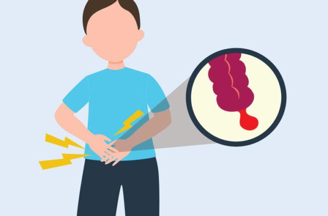 盲腸の原因である「虫垂」はホントに役立たず? 虫垂がもつ重要な役割とは