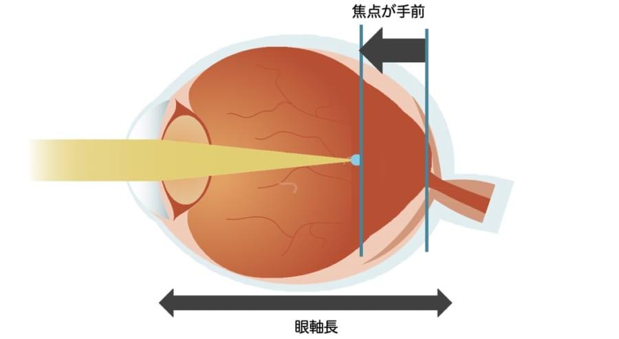 近視は眼軸長が伸長し、網膜上でピントが合わなくなることが原因