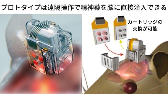 次世代の脳制御チップは光遺伝学を応用している。左はプロトタイプ、右はさらにバージョンアップしたもの