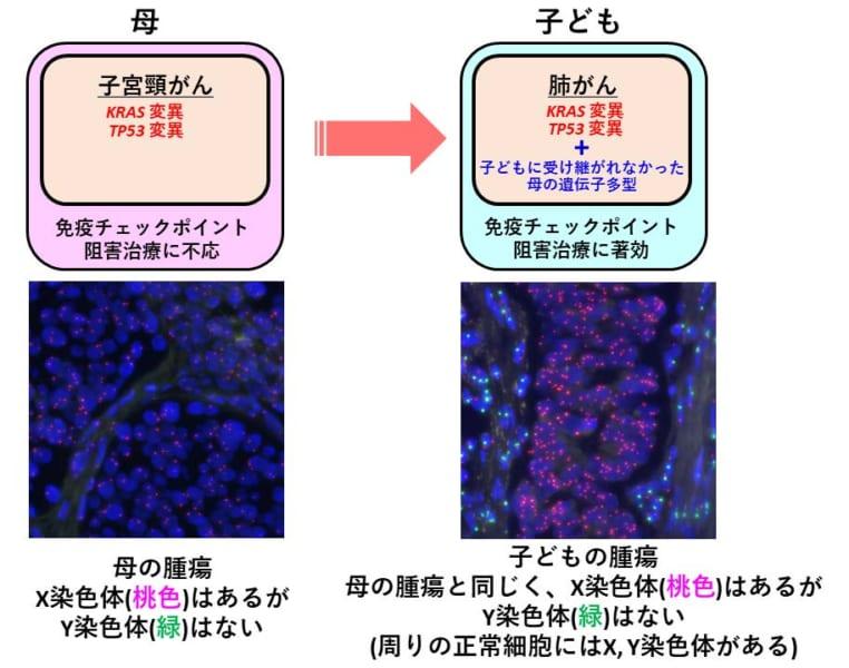 母と子どもの腫瘍の特徴の比較