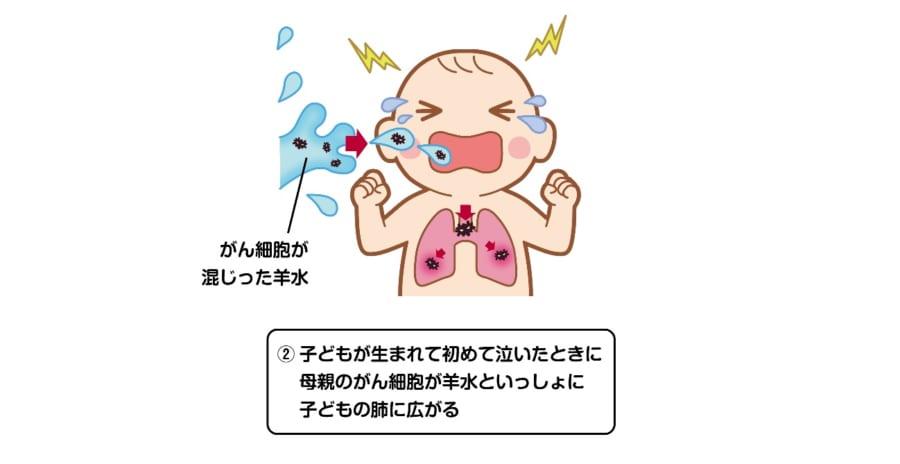 赤ちゃんが初めて泣いた時、肺にがん細胞の混じった羊水が取り込まれる。