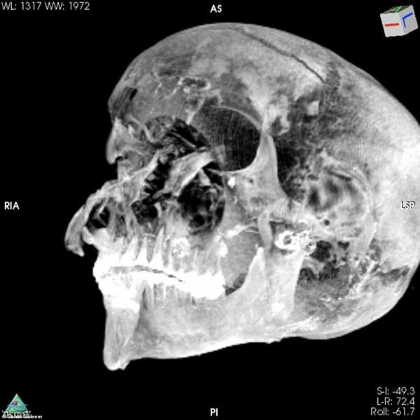セケンエンラーの頭蓋骨