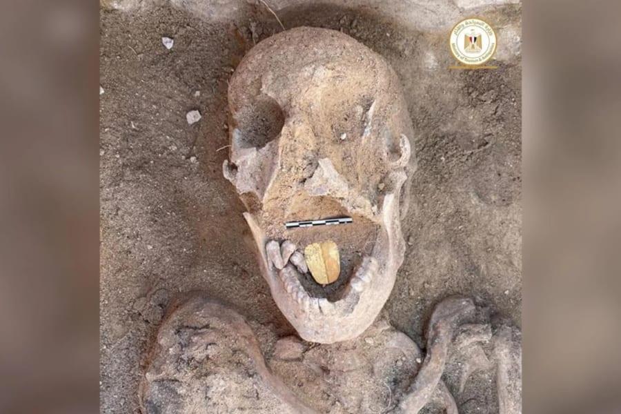 約2000年前の「黄金の舌」をもつミイラを発見!舌を金に変えた目的とは?