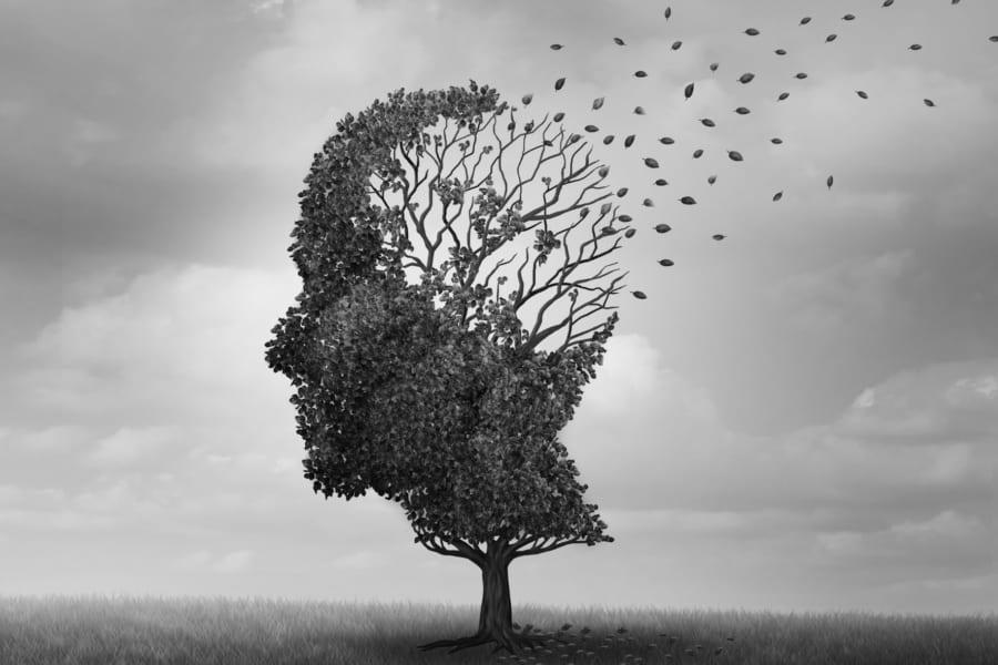 長期麻酔は「脳の接続」を変え認知障害を引き起こす? 退院後に患者の家族が感じる違和感を明らかに