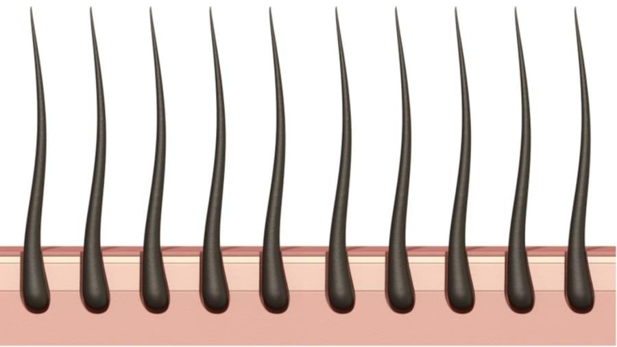 「自然に生え変わる毛組織」の移植に成功 ついにハゲの根本的な治療法を開発?