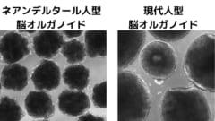 左のネアンデルタール人型の培養脳は小さくシワが多い