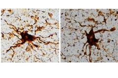 死後に脳内で増殖している「ゾンビ細胞」