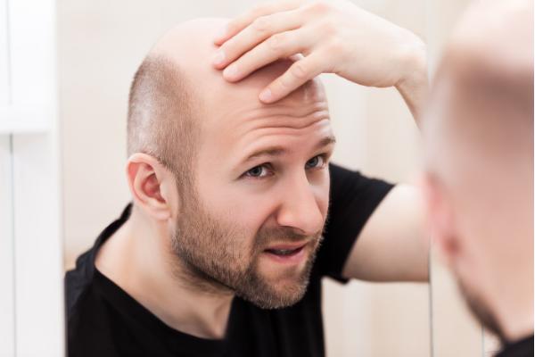 「ハゲの原因」毛穴が再生できず縮小してしまうメカニズムが明らかに! 新しい脱毛症治療薬の開発に繋がる?