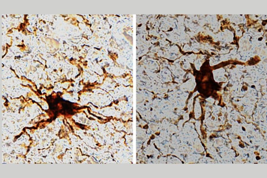 ヒトの脳内で死後も増殖する「ゾンビ細胞」を発見