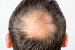 毛を作る毛包の減少がハゲの原因になっている。